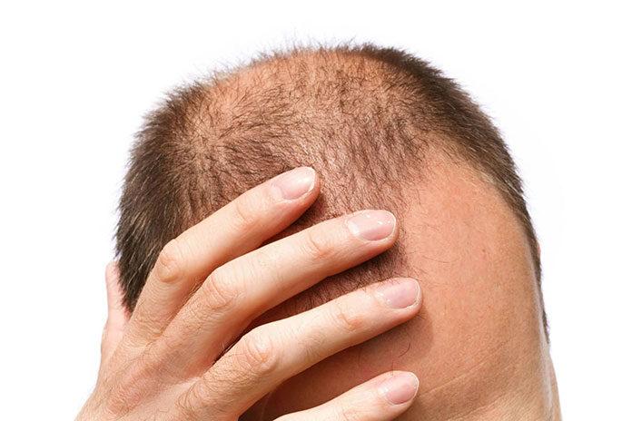 Jak leczyć łysienie